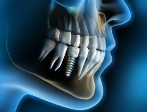 Microbiología Oral (Alta Especialidad Implantología)